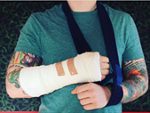 Just Plain Drive: Ed Sheeran injured in a London accident | Blog Post