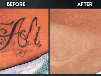 Tattoo Remoov - Mariska Smith  | Blog Post