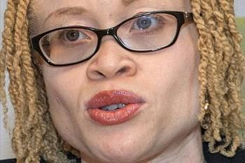 'Own It!' Episode 7: International Albinism Awareness Day | Blog Post