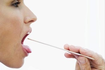 #OralHealthMonth - Cancer of the tongue is serious and on the increase   Blog Post