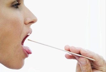 #OralHealthMonth - Cancer of the tongue is serious and on the increase | News Article